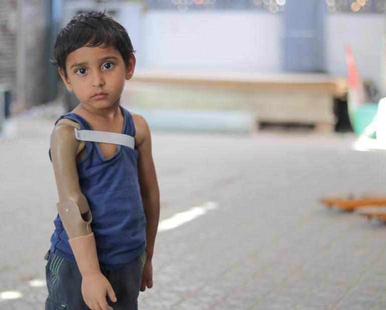 Rayan, now three years old, lost his arm last year when fighting escalated in Aden. He visits the prosthetics centre at a hospital in Yemen.